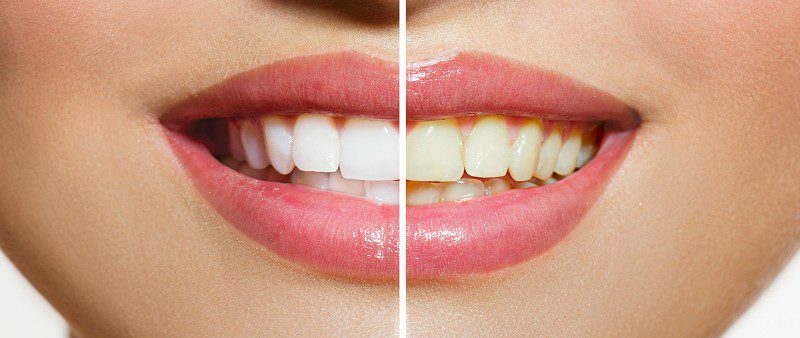 Clínica dental. Blanqueamiento de dientes