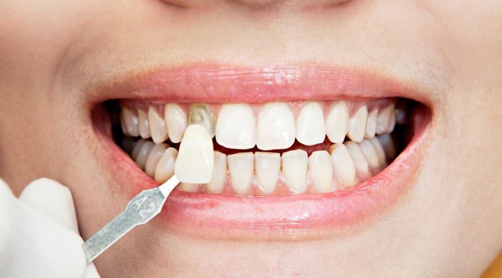 Clínica especialista en Carillas Dentales en Santander