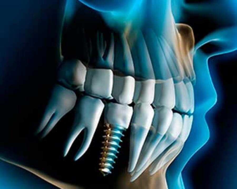 Clínica de implantes en Santander