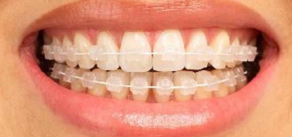 Clínica especialista en Ortodoncia Invisible. Martin Riva Dentistas
