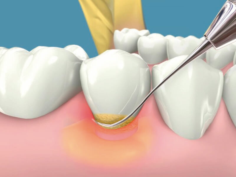Clínica dental en Santander especialistas en