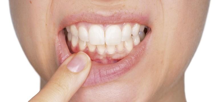 Clínica dental en Santander. Estudio Periodontal en Martin Riva