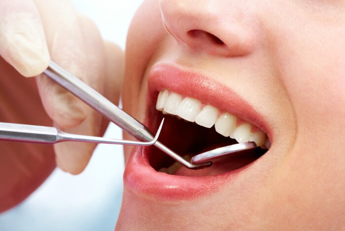 Empaste dental estético en Santander