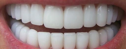 Reconstrucción Dental en Santander