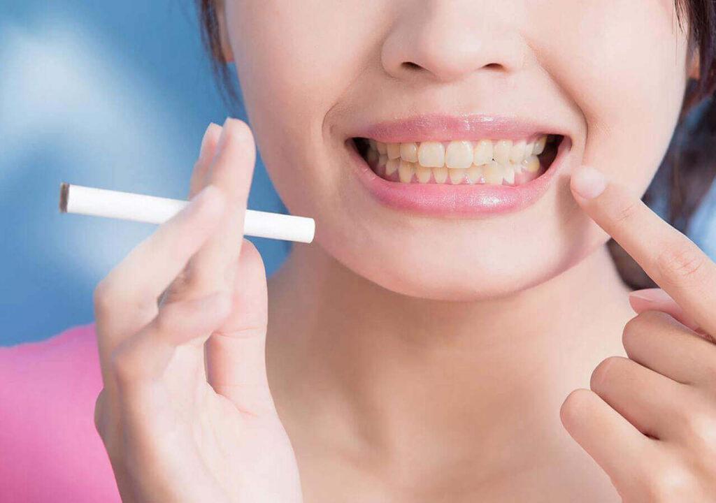 efectos adversos del tabaquismo en la dentadura